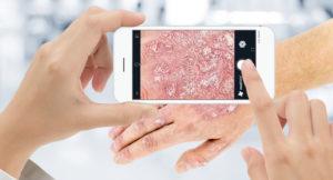Mit der mediDOK PhotoApp ganz einfach Fotos mit Smartphone zum Patienten in mediDOK 2.5 speichern