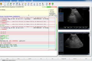 neue schnittstelle s3 und prsyprax