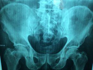 medidok-erfahrung-sichere-diagnostik-pacs-röntgen